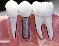dental implants Santa Rosa